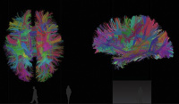 Visualisation of neurological data