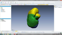 3D printed kidney project by Isodo3d